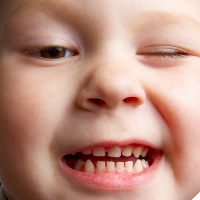 Красные прыщики на языке у ребенка — стоматит
