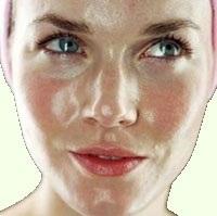 Народные рецепты средства по уходу за комбинированной и жирной молодой кожей лица