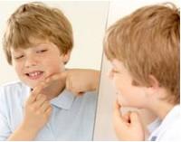 Подростковые угри и их лечение