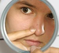 Что означают больные прыщи на нижней челюсти. Что вообще значат прыщи у человека на лице.